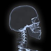 x-ray-prezi-template